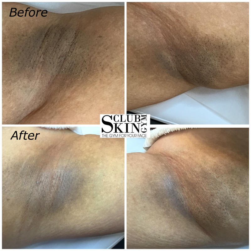 ClubSkinGym.com - Before and After Real Results